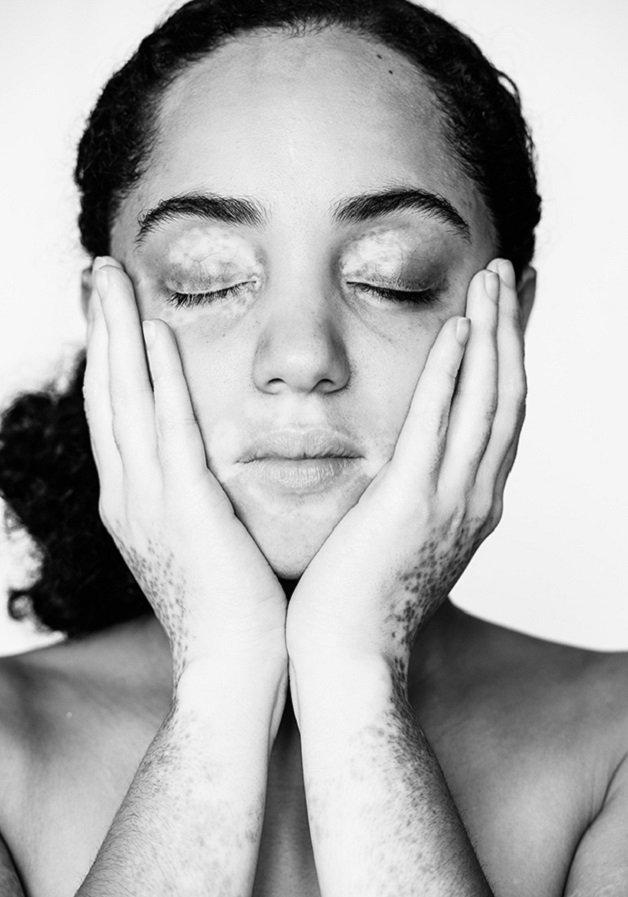 vitiligo8