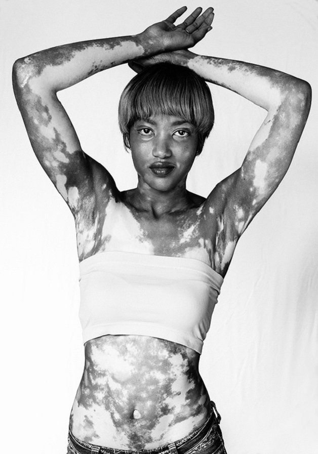 vitiligo9