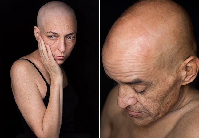 Série intensa capta expressões cruas de pessoas que passam por quimioterapia