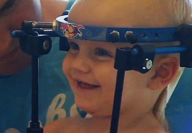 Médicos fazem o que parecia impossível e restituem cabeça de bebê que sofreu decapitação interna em acidente