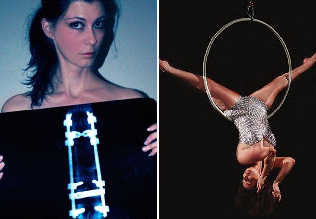 Inspiração: como uma mulher paralisada da cintura para baixo virou acrobata
