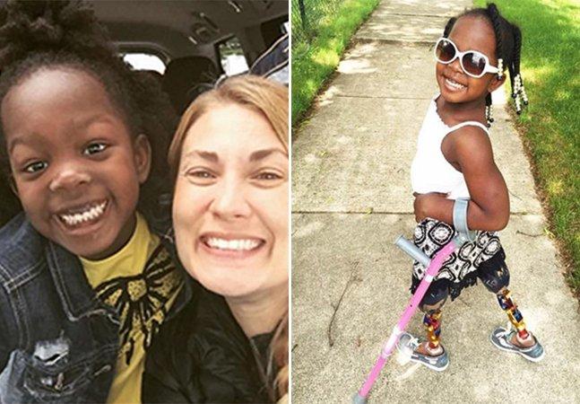 Loja inova ao escolher criança com deficiência para ser princesa em seu anúncio