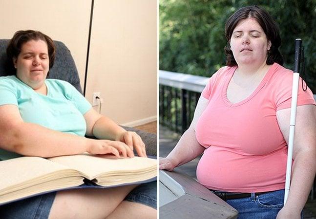 O estranho caso da mulher com um distúrbio raro que realizou o sonho de ser cega