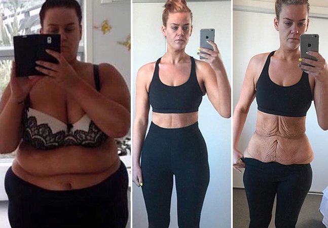 Mulher que emagreceu 86 kg conta sua jornada nas redes sociais