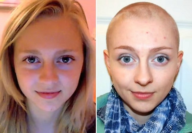 Jovem com depressão cria vídeo incrível para mostrar sua transformação ao longo de 6 anos