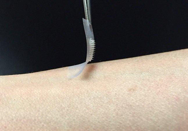 Pesquisadores criam adesivo de insulina que pode substituir injeções para diabéticos