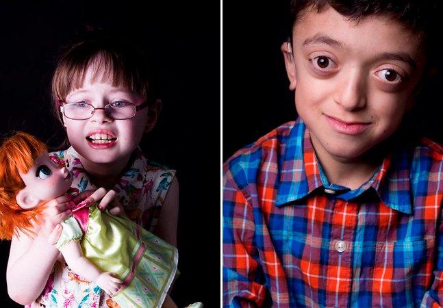 Fotógrafo propõe desafio: enxergar as crianças para além de suas doenças raras