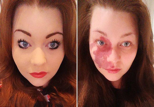 Jovem com marca de nascença abandona a maquiagem que usou durante 14 anos pra esconder o rosto