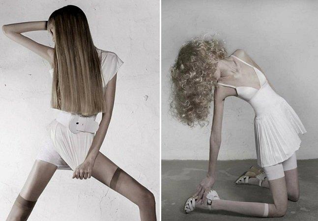 """Série de fotos inquietante mostra que anorexia é muito mais do que """"estar fraca"""""""