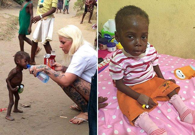 """A tocante recuperação de uma das crianças abandonadas na Nigéria por ser considerada """"bruxa"""""""