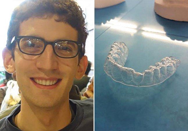 Estudante usa impressora 3D para criar seu próprio aparelho e economizar milhares de dólares