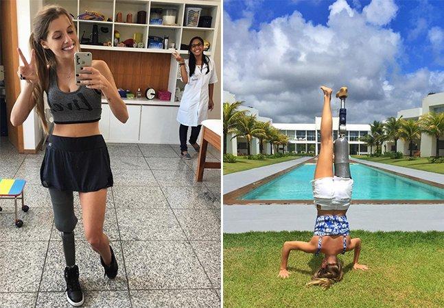 Mineira que teve perna amputada mostra que encarar a vida com otimismo é o melhor caminho