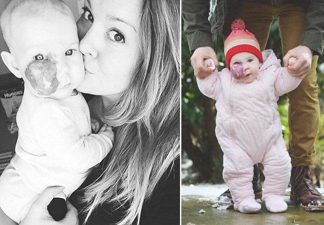 O que podemos aprender com a mãe que cansou de perguntas sobre a marca de nascença da filha