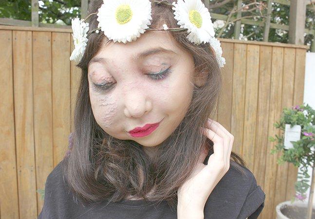 Menina de 11 anos com rosto desfigurado vira inspiração ao dar dicas de beleza no YouTube