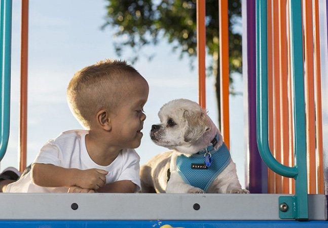 Garoto com nanismo cria amizade inspiradora com cachorro com a mesma condição