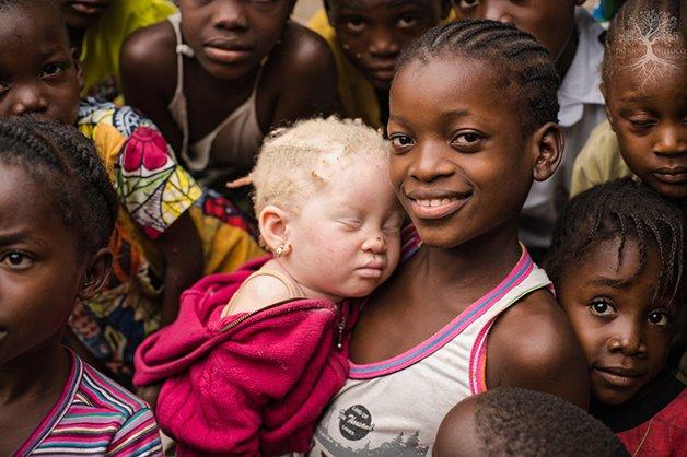 AlbinismoWolf1
