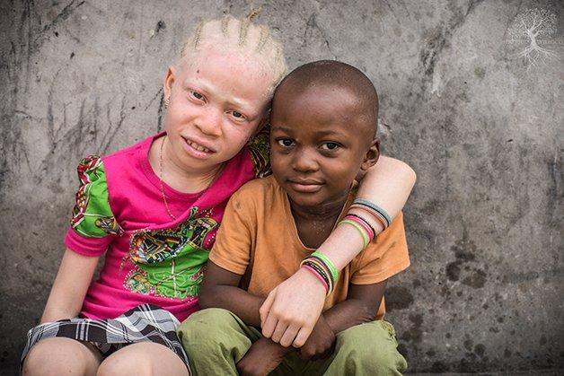 AlbinismoWolf4