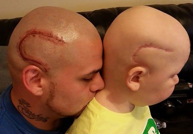 Pai tatua cicatriz igual à do filho operado a um tumor cerebral para melhorar sua autoestima