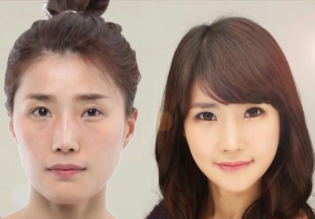 Por que pais coreanos dão cirurgias plásticas para os filhos antes que eles entrem na faculdade