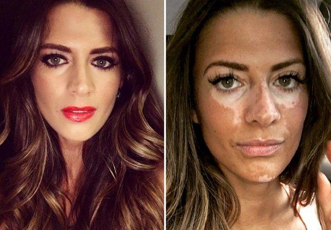 Depois de esconder 'problema' de pele por 10 anos, modelo decide se assumir com foto e mensagem impactantes