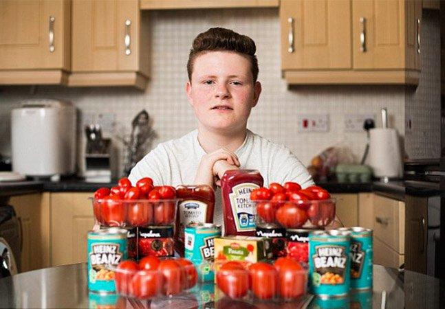 O estranho caso do adolescente que passou 12 anos se alimentando só de tomate