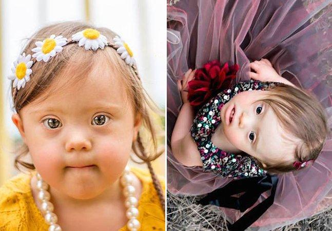 Série de fotos encantadora exalta a beleza de crianças com necessidades especiais
