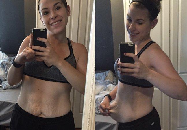 Mulher emagrece 40 quilos e compartilha experiência pra mostrar o lado nada glamouroso da perda de peso
