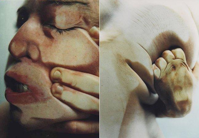 A violência das cirurgias plásticas inspira a estética bizarra das fotos de Jenny Saville e Glen Luchford