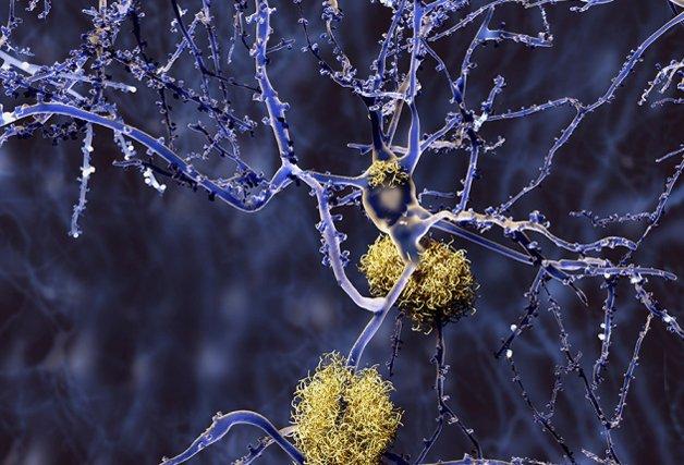 A proteína beta-amiloide (em amarelo), agindo no cérebro