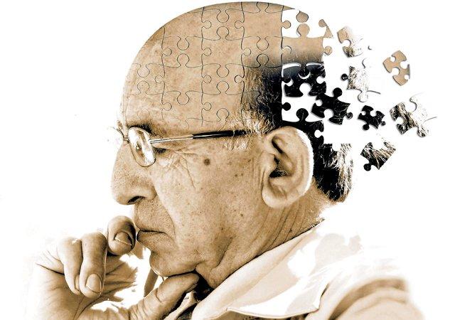 Pesquisadores revelam anticorpo que pode tornar mais próxima a cura do Alzheimer