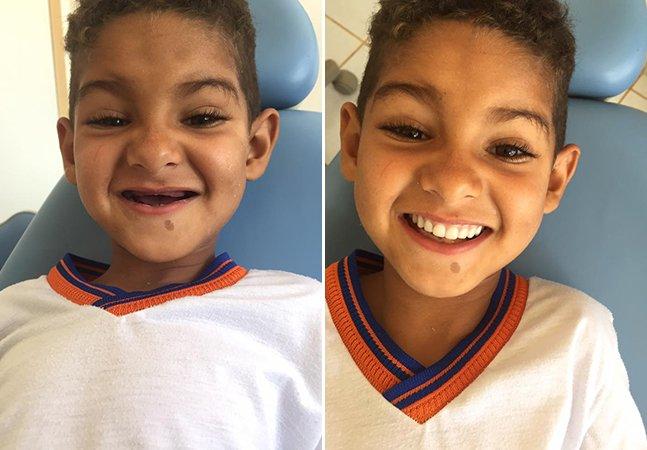 Dentista realiza desejo de menino na Bahia: ter dentes iguais aos dos colegas