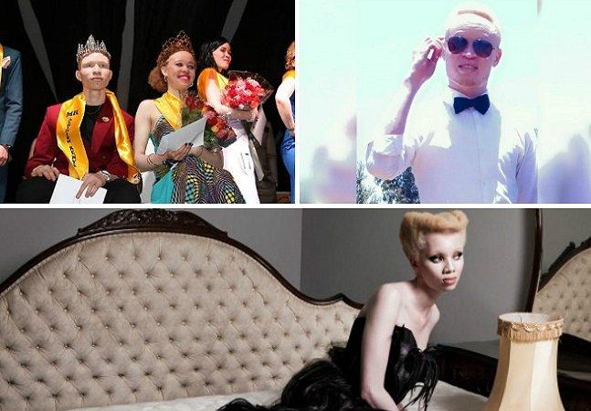 Concurso de beleza faz história ao ser o primeiro exclusivo para albinos em um país onde eles são perseguidos