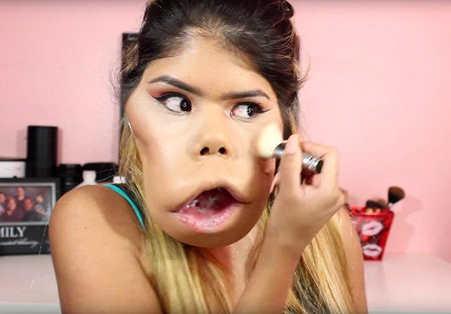 Vlogger com condição rara quebra estereótipos de beleza com tutoriais de maquiagem na internet