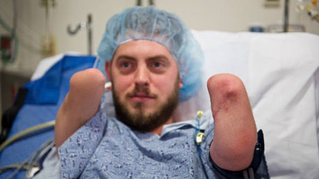 size_590_16_9_transplante-de-dois-bracos-em-veterano-de-guerra-americano
