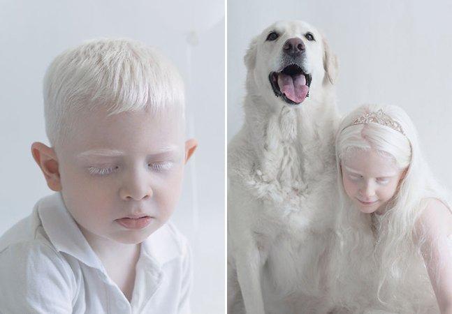 Fotógrafa capta a beleza hipnotizante de pessoas albinas