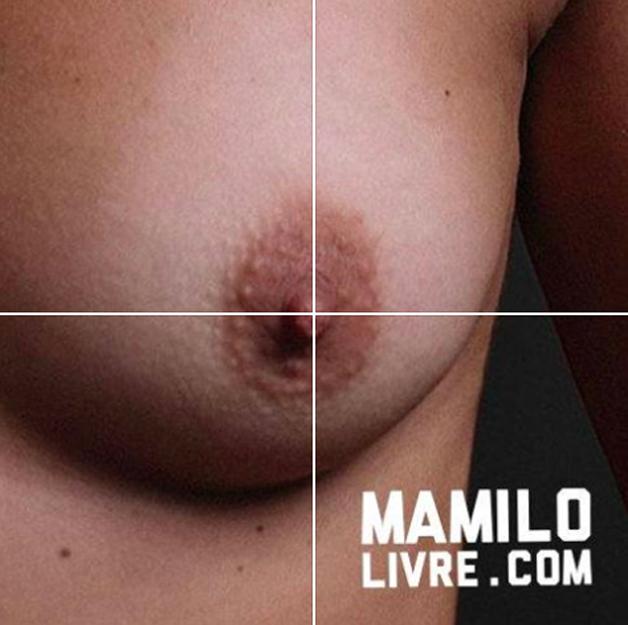 mamilo2
