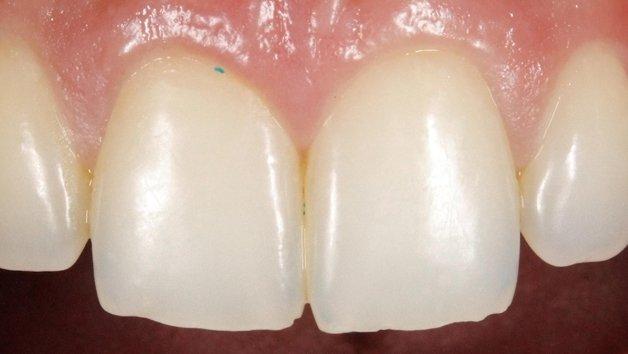 Algumas partículas podem acabar presas nos dentes ou gengivas, precipitando problemas dentários