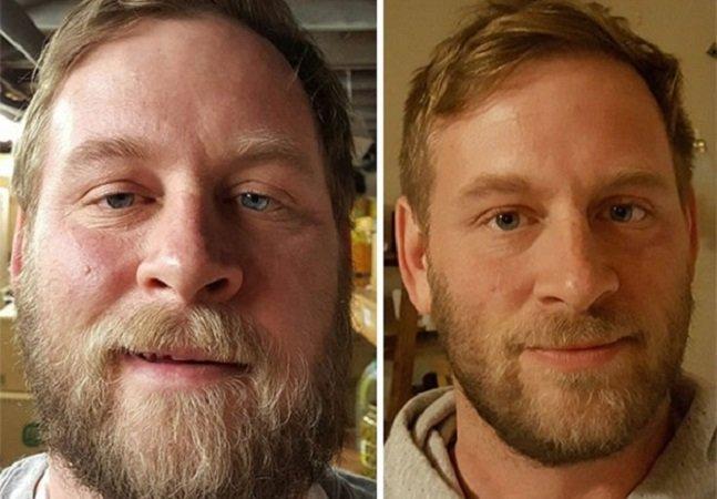 Série fotográfica no estilo 'antes e depois' mostra o que acontece quando você para de beber
