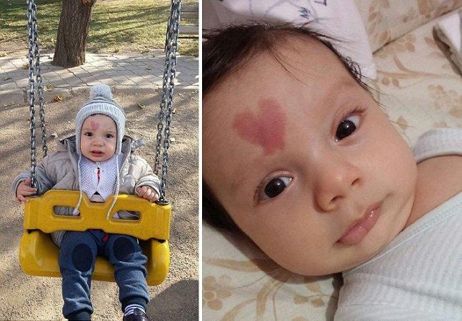 Este menino virou sensação por um motivo maravilhoso: nasceu com o desenho de um coração no rosto