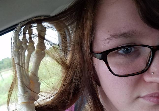 Ela apostou no bom humor e criou uma conta no Instagram para sua perna amputada após um câncer