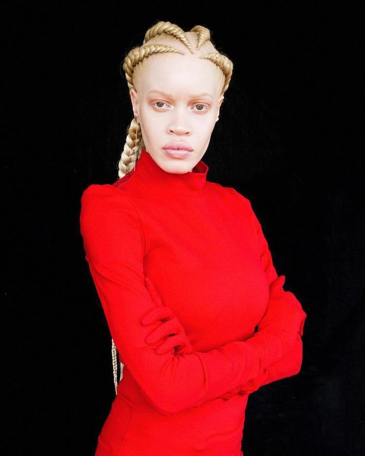 diandra-forrest-albino-model-7