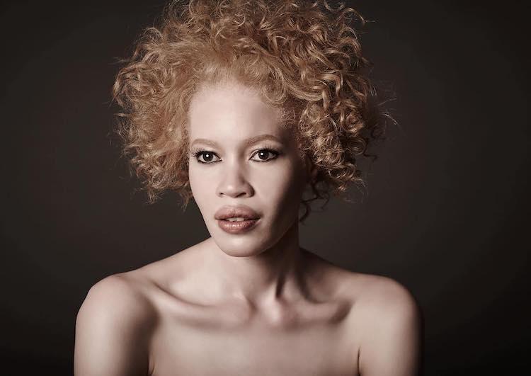 diandra-forrest-albino-model-9