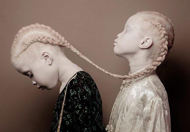 As gêmeas albinas de SP de 11 anos que estão sacundindo a indústria da moda com sua beleza única