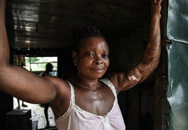 Fotógrafa retrata as cicatrizes que a vida deu a essas pessoas como forma de ajudá-las a aceitar seus corpos