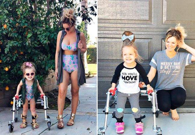 A menina com paralisia cerebral que virou ícone de estilo e inspiração no Instagram