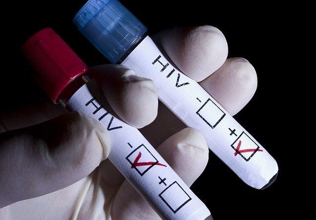 Cientistas dão passo gigante ao eliminar HIV do organismo de animais vivos