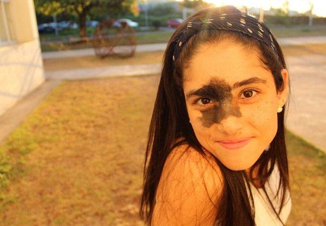 Brasileira com marca de nascença rara se recusa a removê-la e exalta-a em fotos empoderadoras