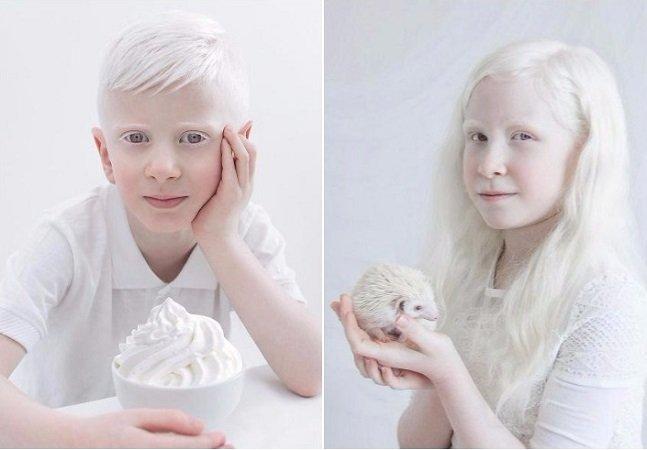A impressionante beleza de pessoas albinas continua conquistando admiradores por aí