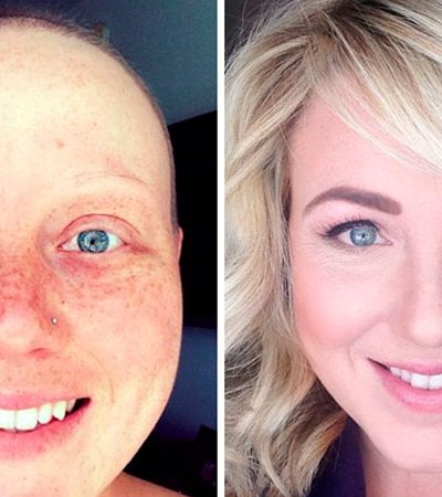 10 imagens 'antes e depois' de pessoas que venceram o câncer para voltar a ter fé na vida