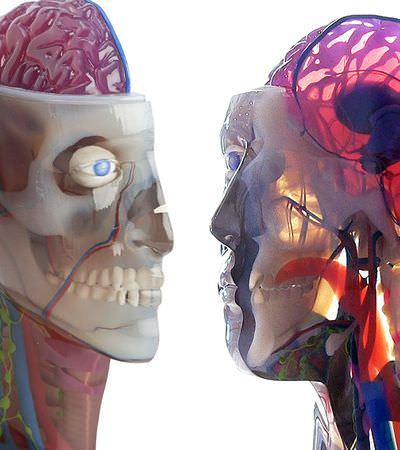 Impressora 3D começa a ajudar a corrigir deformações cranianas em crianças